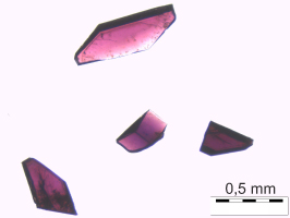 Lichtmikroskopisches Bild des Joanneumits; Foto: UMJ